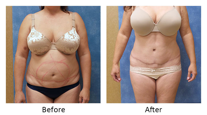 thumbs_abdominoplasty-003