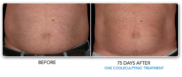 Male Louisville Coolsculpting before & after treatment