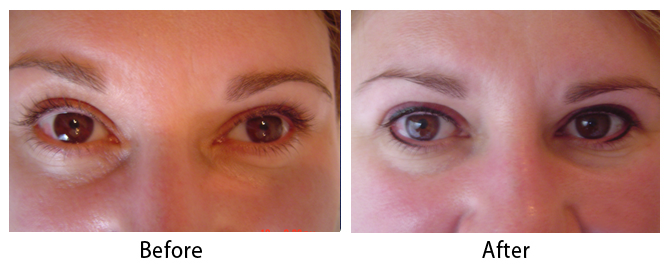 Permanent Makeup Before Amp After Photos Dr Sean Maguire
