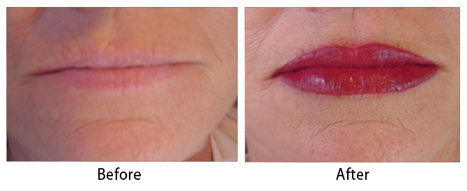 Permanent Makeup Before & After Photos | Dr  Sean Maguire