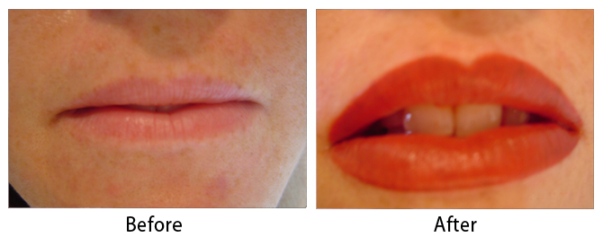 Permanent Lip Color in Louisville