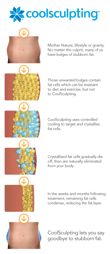 Louisville CoolSculpting Procedures by Dr. Maguire