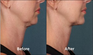 KYBELLA-Patient-1-side-300x178
