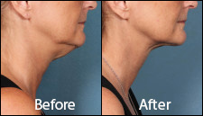KYBELLA-Patient-3-side