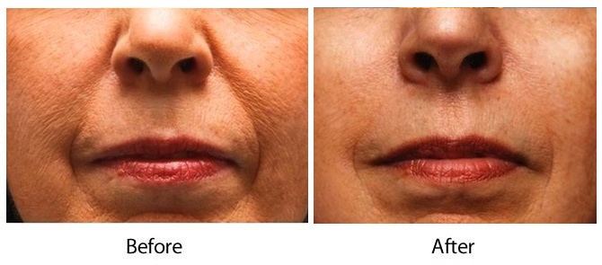 Bellafill Treatments in Louisville - Dr Maguire