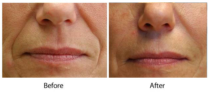 Louisville Bellafill Wrinkle Treatments