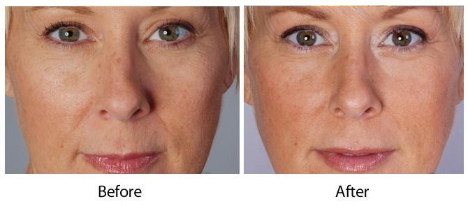 Louisville Bellafill Wrinkle Treatments