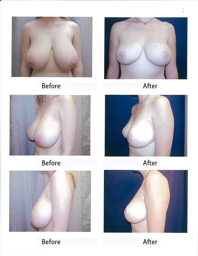 Before after photos breast reduction