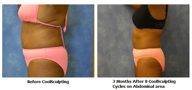 Louisville Coolsculpting Procedures Before and After Photos