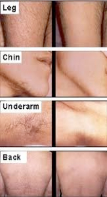 Laser Hair Removal Louisville Ky Physician S Center For Beauty