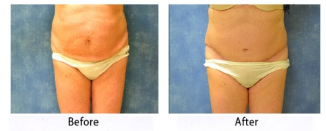 thumbs_abdominoplasty-001