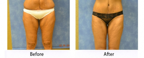 thumbs_abdominoplasty-002