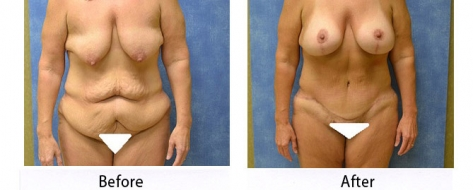 thumbs_abdominoplasty-002b