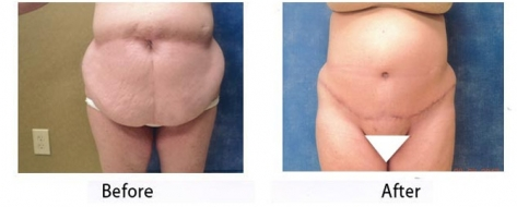 thumbs_abdominoplasty-005
