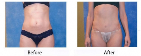 thumbs_abdominoplasty-006