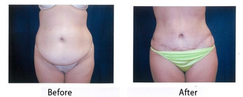 thumbs_abdominoplasty-007