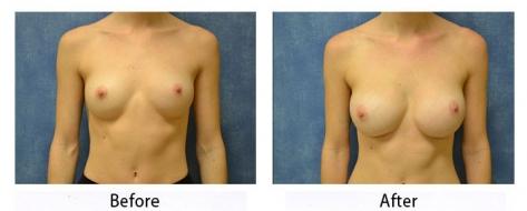 thumbs_breast-001-1