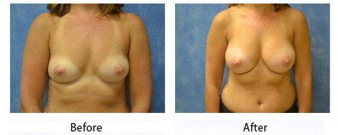 thumbs_breast-002b-1