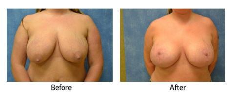 thumbs_breast-003-1