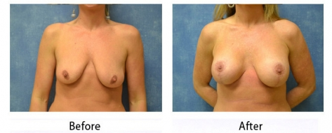 thumbs_breast-003b-1