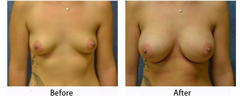 thumbs_breast-005-1