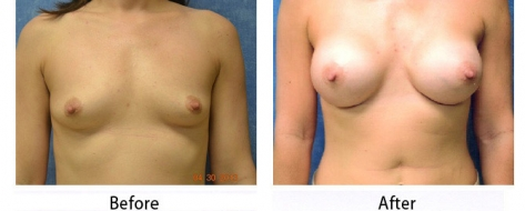 thumbs_breast-005b-1