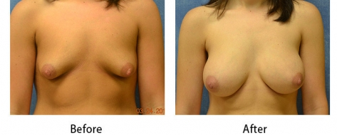 thumbs_breast-005c-1