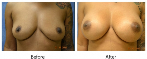 thumbs_breast-006-1