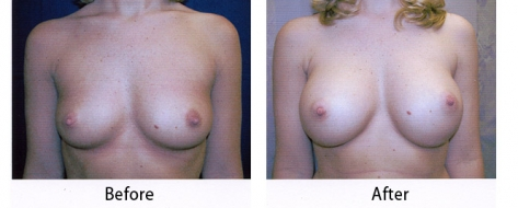 thumbs_breast-007-1