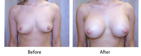 thumbs_breast-008-1