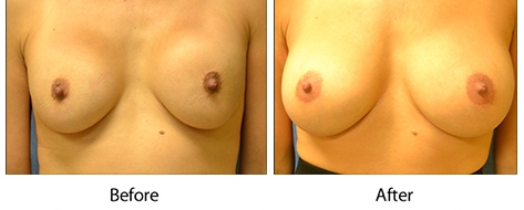 thumbs_breast-010