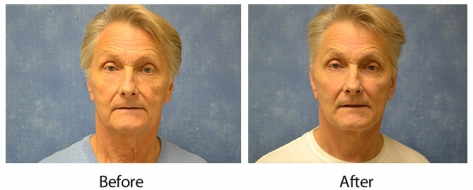 Male Louisville Facelift before & after photos – Dr. Sean Maguire