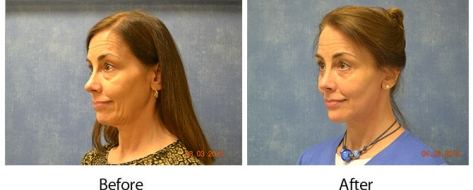 Before and after photos of a patient who received facelift surgery in Louisville from Dr. Sean Maguire