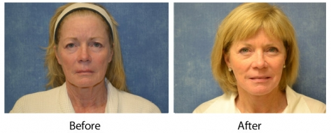 Louisville facelift patient before and after face lift surgery with Dr. Maguire