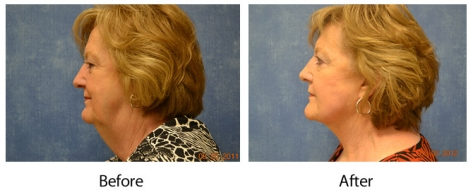 Louisville facelift results from Dr. Maguire