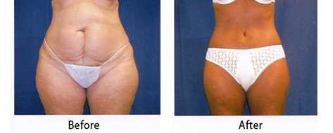 thumbs_abdominoplasty-004