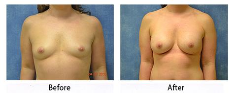 breast-011