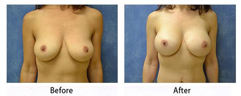 breast-013
