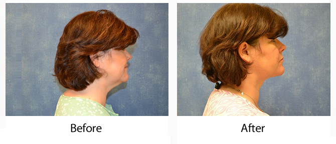 Woman before and after neck liposuction in Louisville