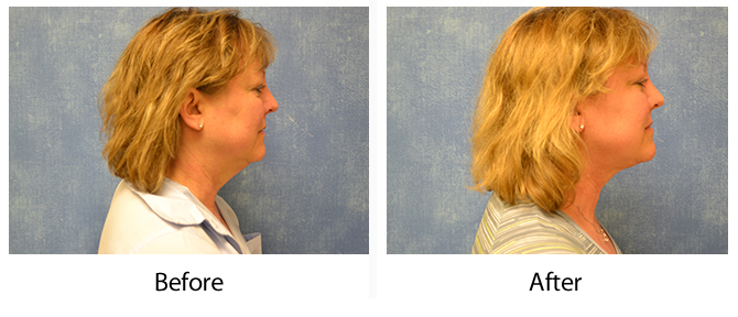 Louisville Liposuction before and after photo