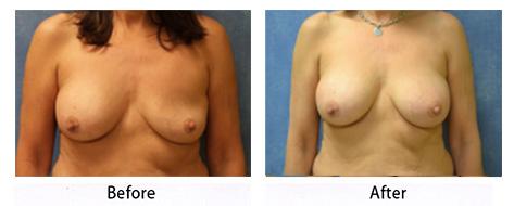 breast-014