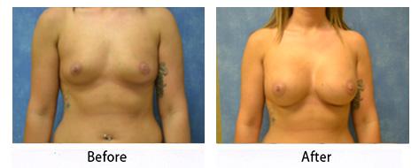 breast-015