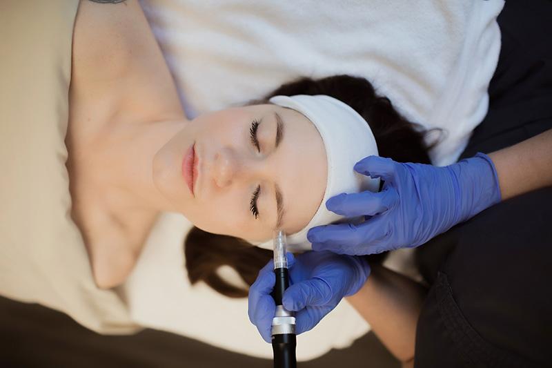 Dermal Needling with Human Growth Factors Louisville