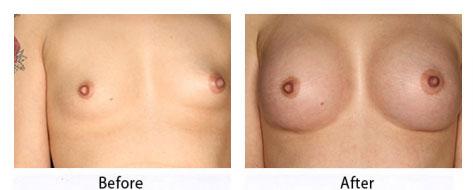 thumbs_breast-30