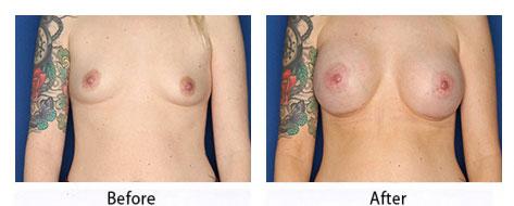 thumbs_breast-32