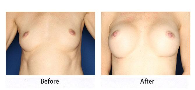 thumbs_breast-33