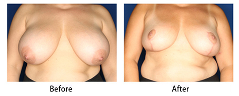 thumbs_breast-009-1