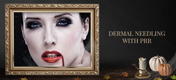 Dermal needling special