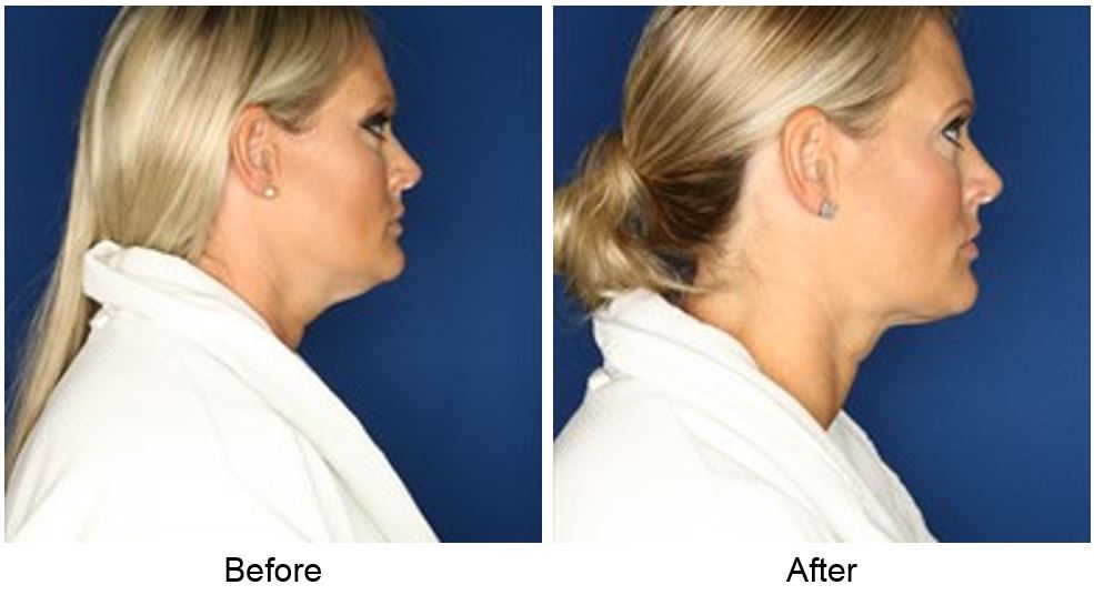 Neck Liposuction Before After Photos Dr Sean Maguire