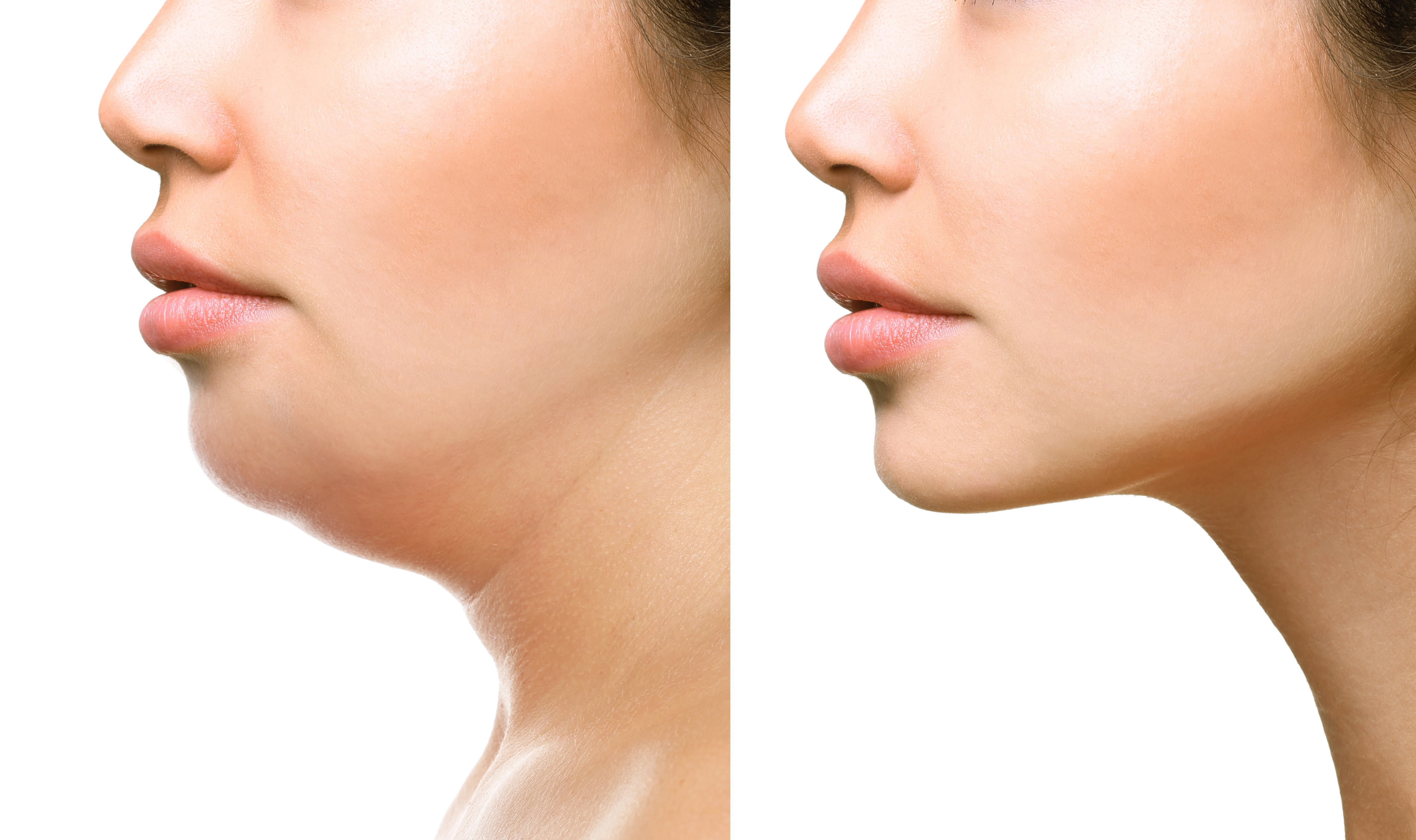 Double Chin Treatment Options Louisville